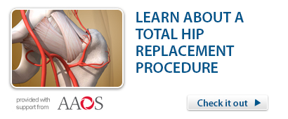 Total Hip Replacement Procedure