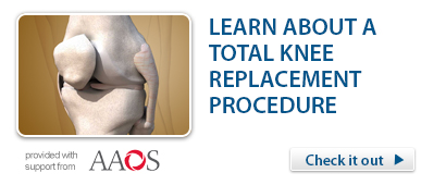Total Knee Replacement Procedure